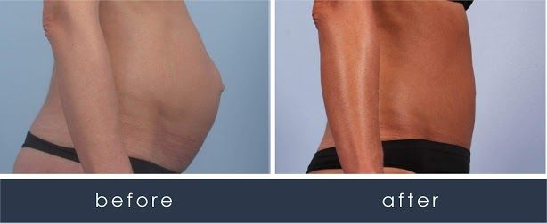Before and After CombiTuck Procedure/Tummy Tuck  treatment #4