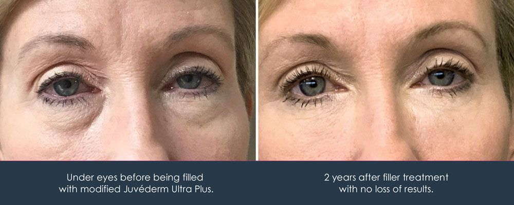 juvederm for under eye bags