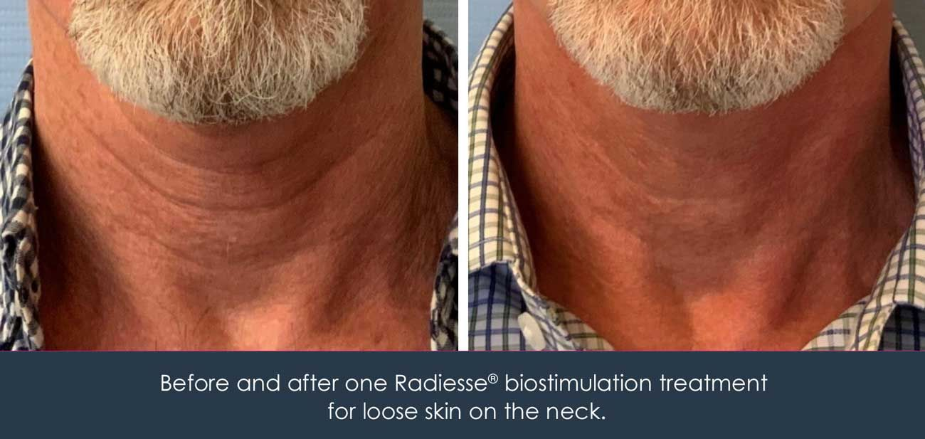 Radiesse biostimulation for loose neck skin before and after patient photo