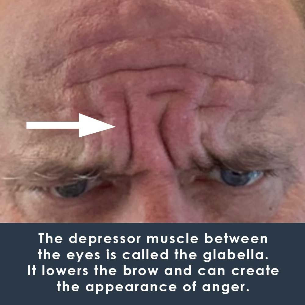 depressor muscle on face