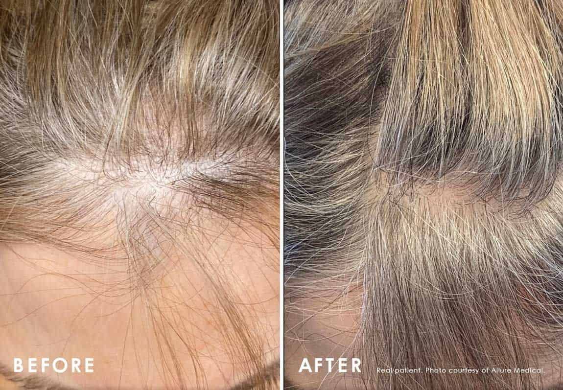 Before and After Alopecia Treatment treatment #2