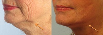 facelift chin