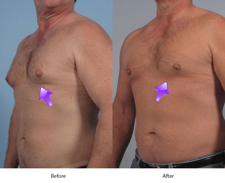 Before and After Breast Reduction for Men treatment #1