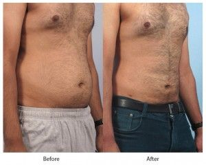 Before and After Liposuction for Men treatment #1