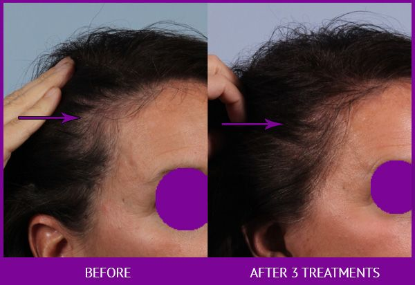 Before and After Platelet Rich Plasma (PRP) for Hair Restoration treatment #3