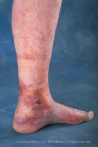 The leg of someone suffering from venous insufficiency