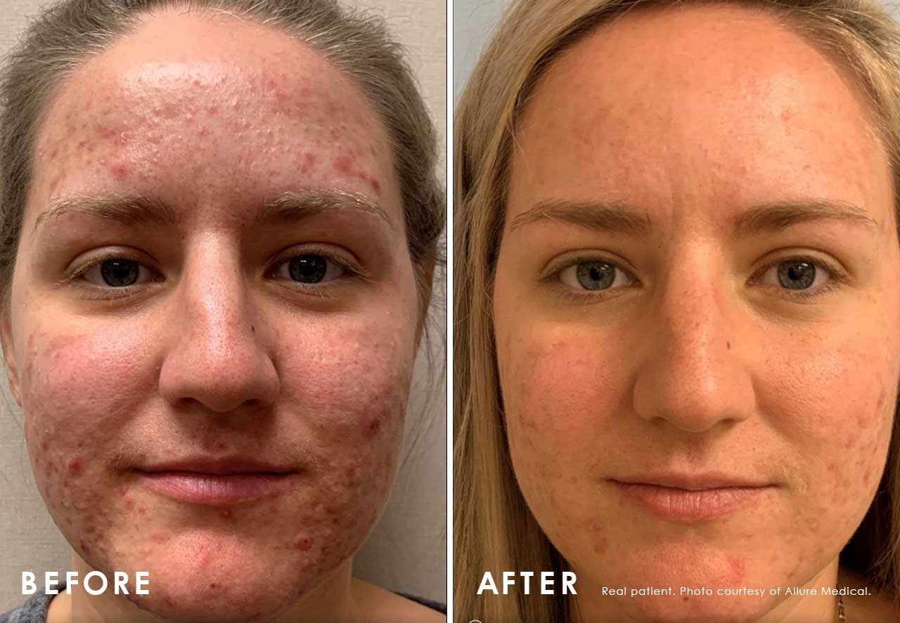Before and After Acne Treatment treatment #1