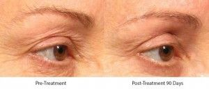 Before and After Ultherapy Skin Tightening Treatment treatment #4