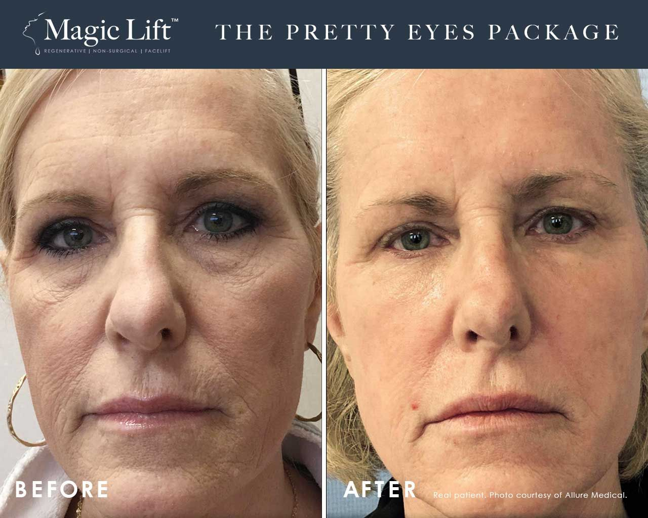 Before and After Magic Lift (Non-Surgical Face Lift) treatment #3
