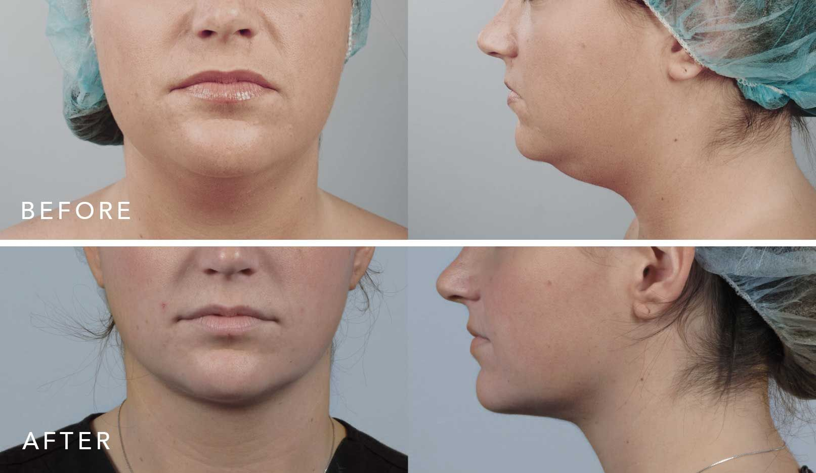 scarless neck lift surgery before and after fat removal in the neck area