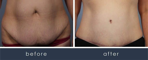 Before and After CombiTuck Procedure/Tummy Tuck  treatment #3
