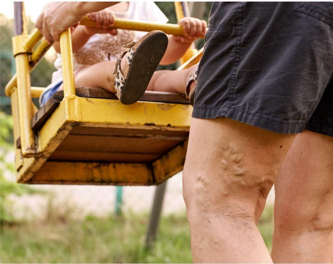 Man with vein disease pushing a swing