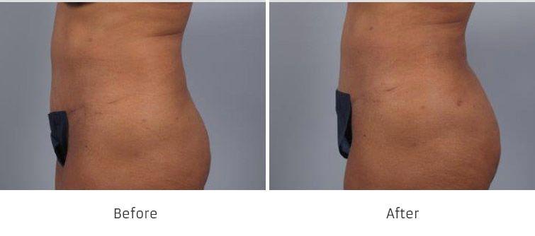 Before and After Brazilian Butt Lift Surgery treatment #3