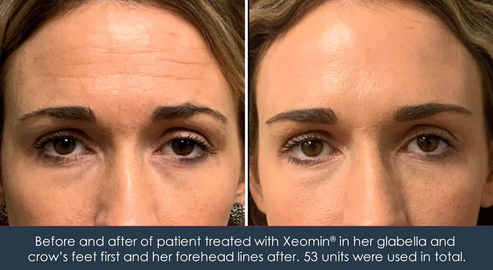 forehead lines treated with Xeomin