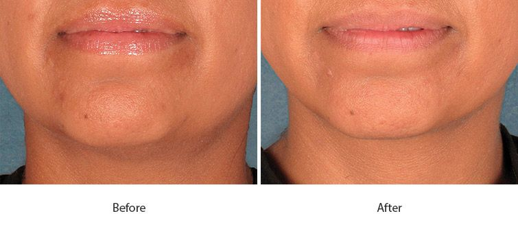 Before and After Kybella Injections treatment #1