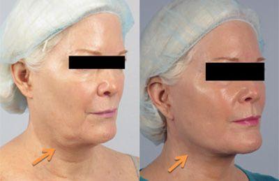 sagging skin facelift