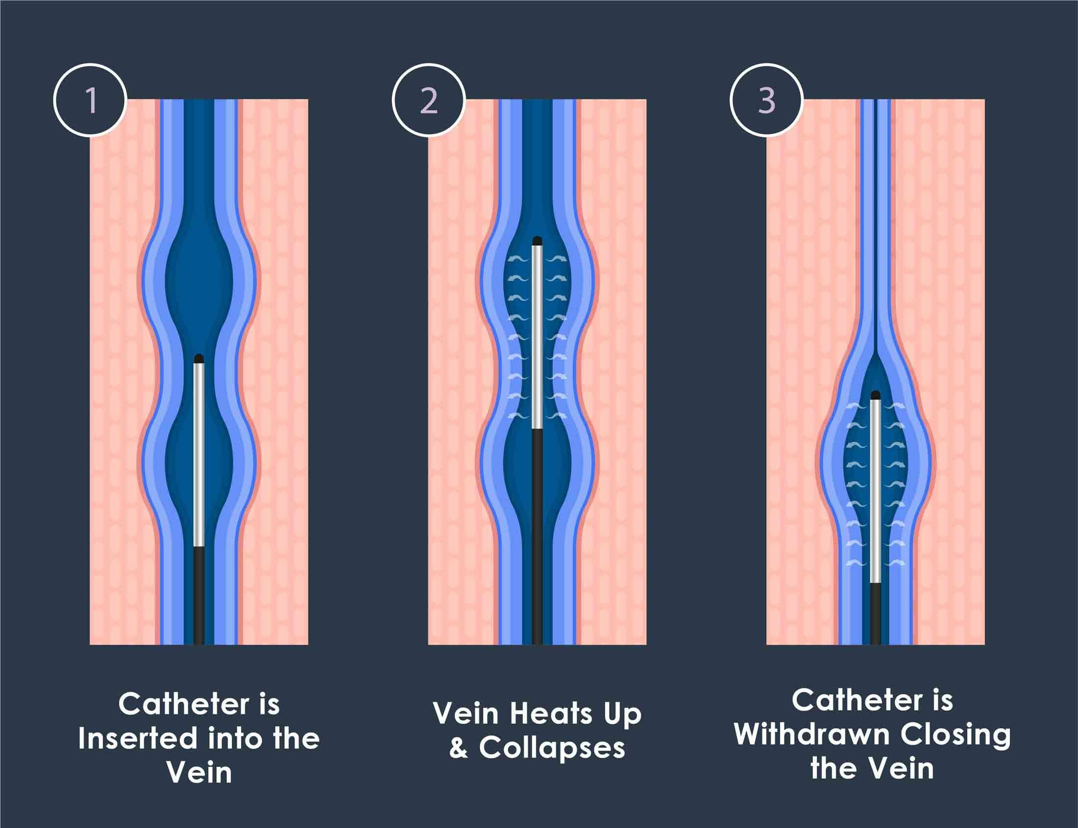 radiofrequency ablation vein treatment diagram