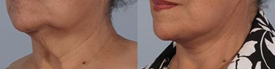 loose neckskin