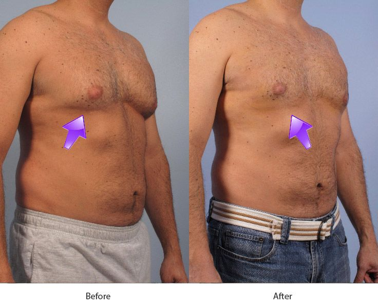 Before and After Breast Reduction for Men treatment #3