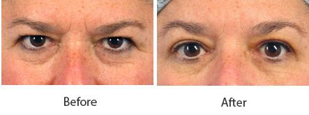 Before and After Cosmetic Eyelid Surgery treatment #2