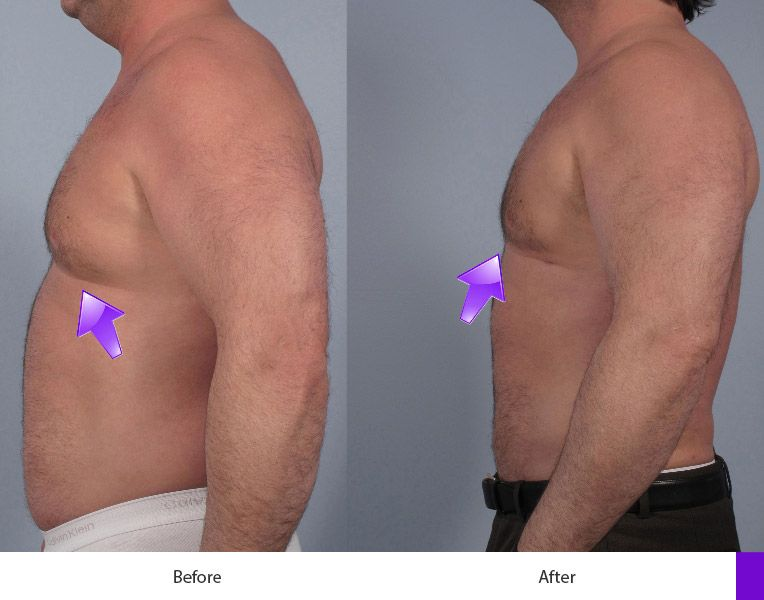 Before and After Breast Reduction for Men treatment #2