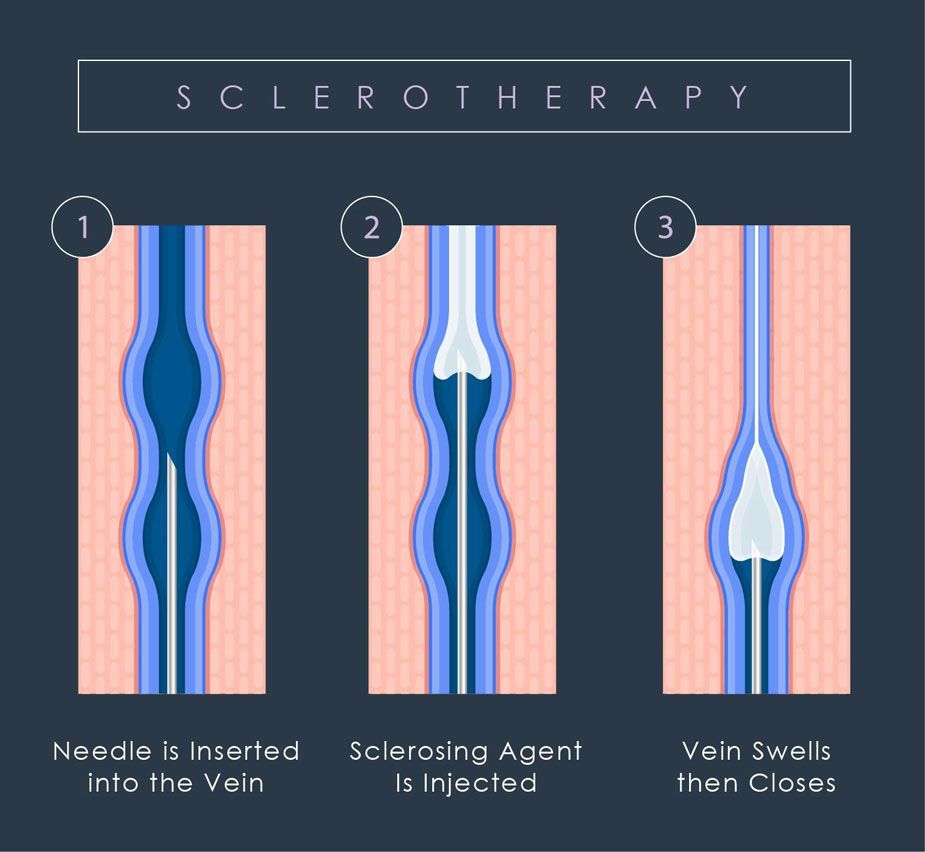 sclerotherapy diagram