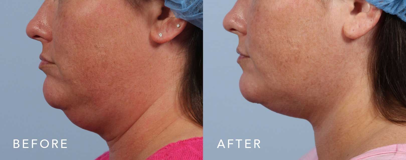 Before and After Scarless Neck Lift treatment #3
