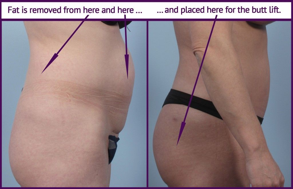 Brazilian Butt Lift surgery before and after image to show how fat is transferred from the abdomen region to the buttocks