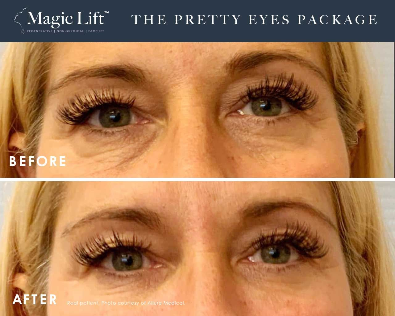 Before and After Magic Lift (Non-Surgical Face Lift) treatment #4
