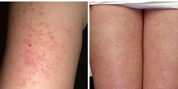 bumps on legs
