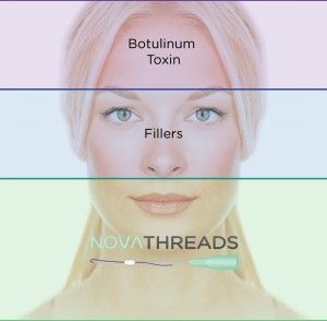 threadlift woman