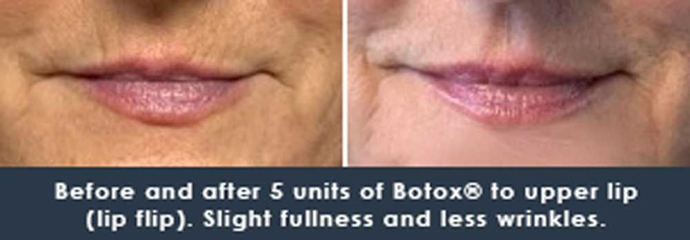 5 units of botox to lip