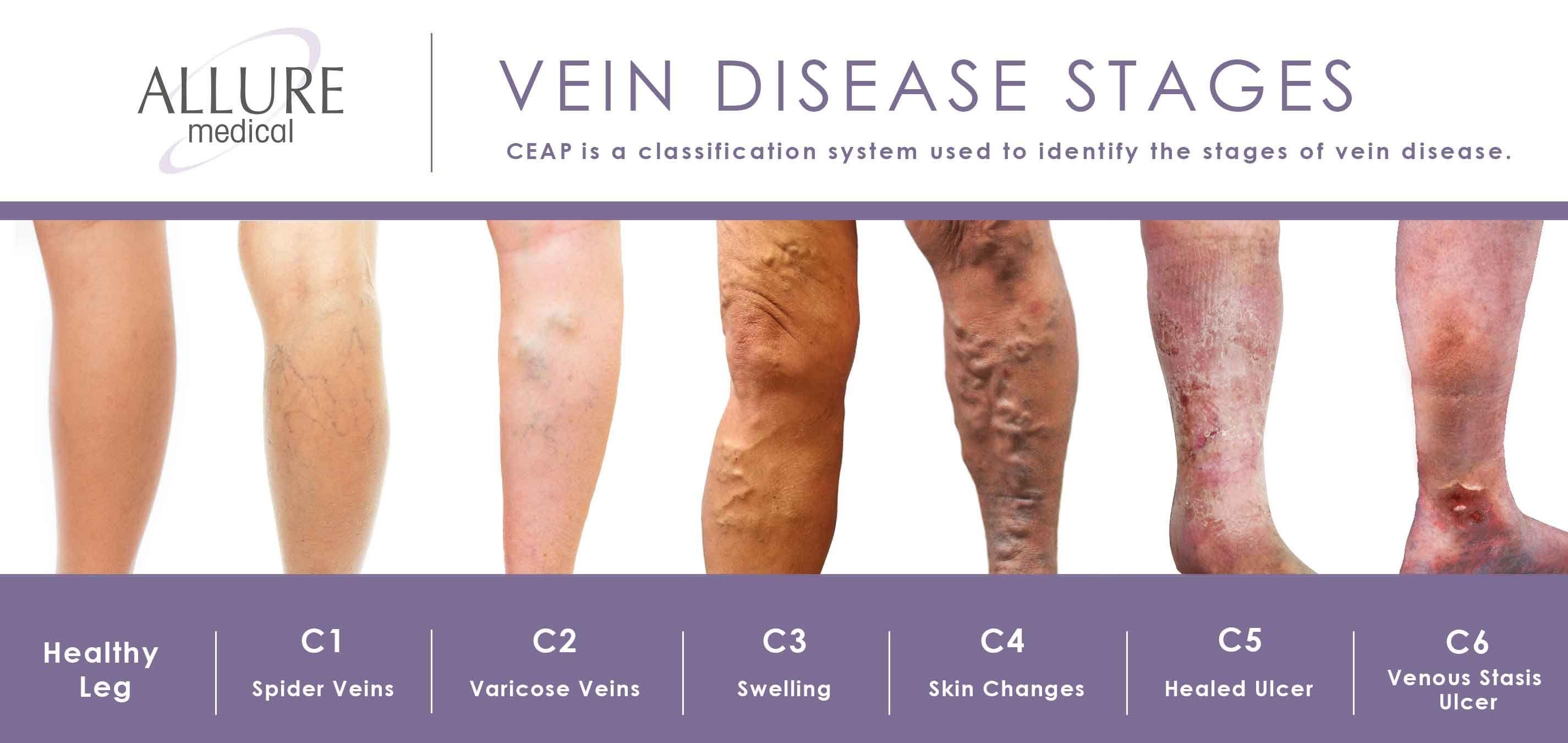 Vein Disease Stages