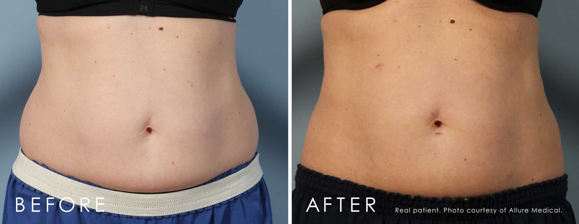 Before and After CoolSculpting® treatment #2