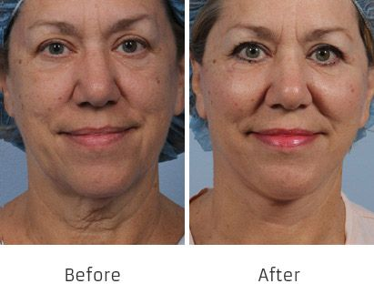 Before and After Allure Lift treatment #3