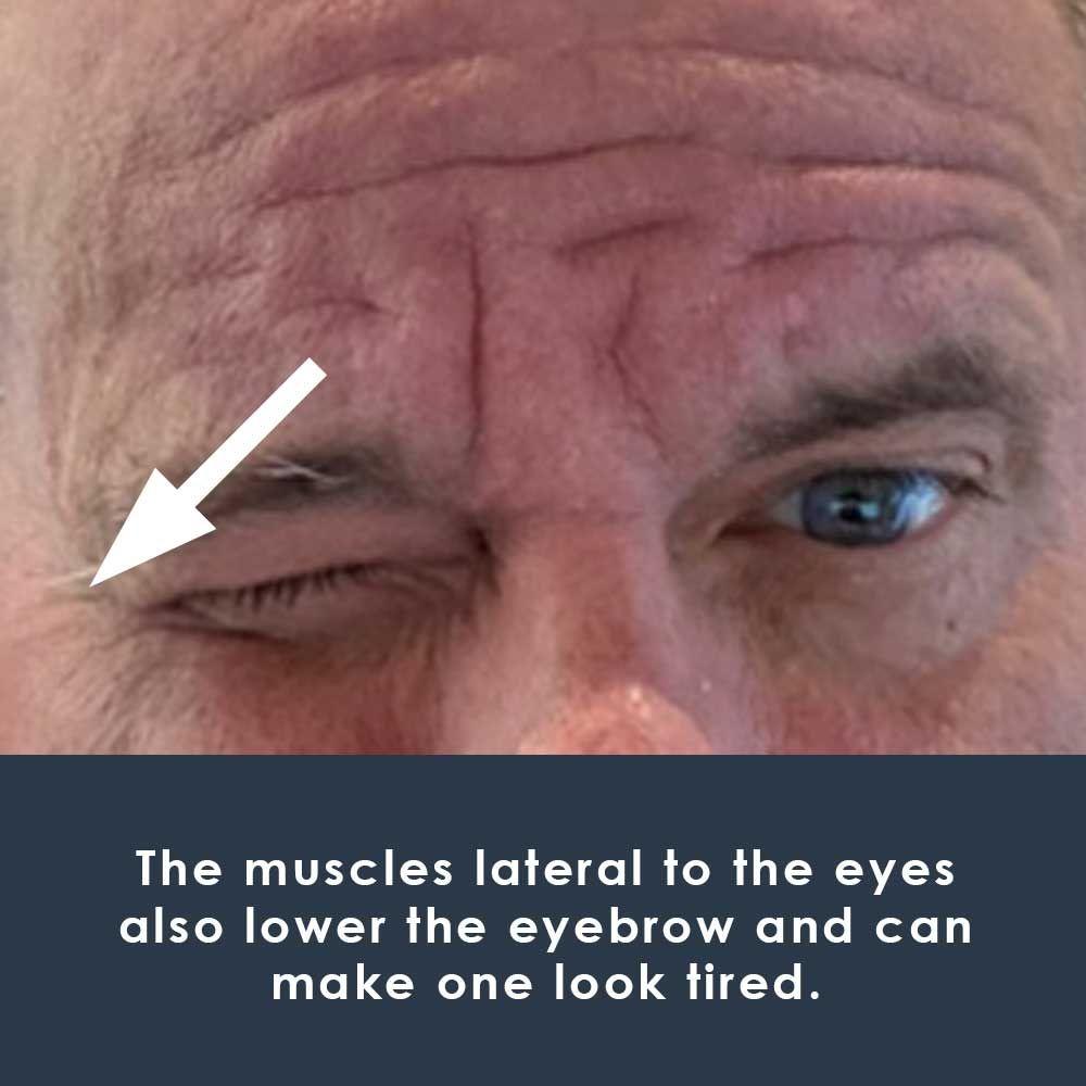 muscles lowering eyebrow