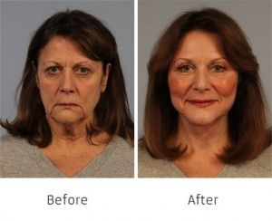 Before and After Allure Lift treatment #2