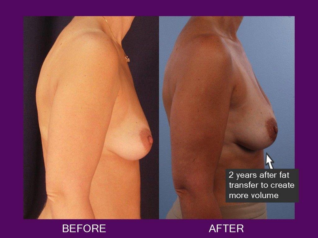fat transfer breasts