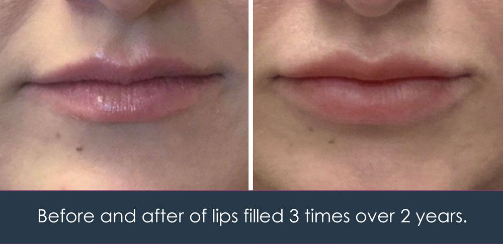 juvederm for the lips