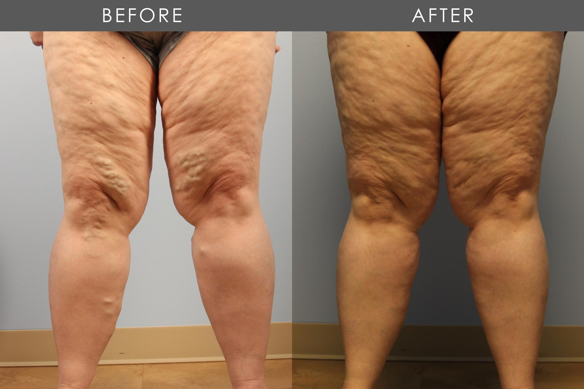 Before and After Varicose Vein Treatment treatment #2