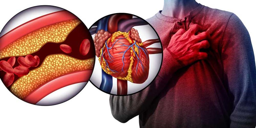 Man grabbing his chest from cardiovascular disease, clogged arteries and heart attack