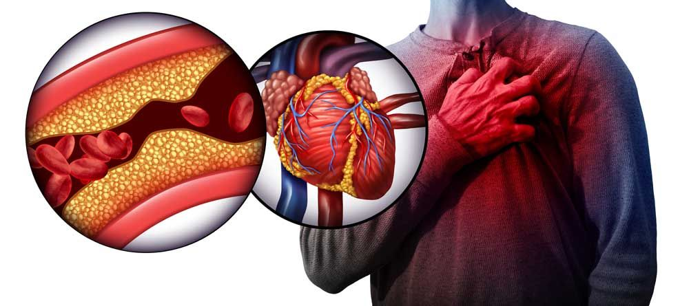 diagram graphic illustration of a heart attack, chest pain in man