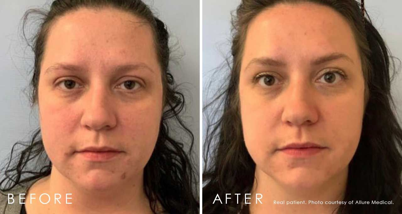 Before and After Xeomin® treatment #1