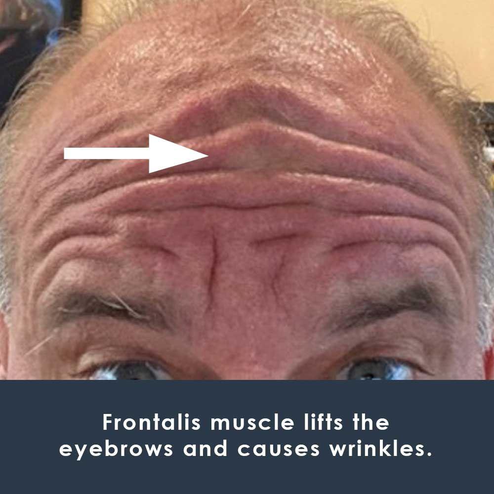 frontallis muscle on face