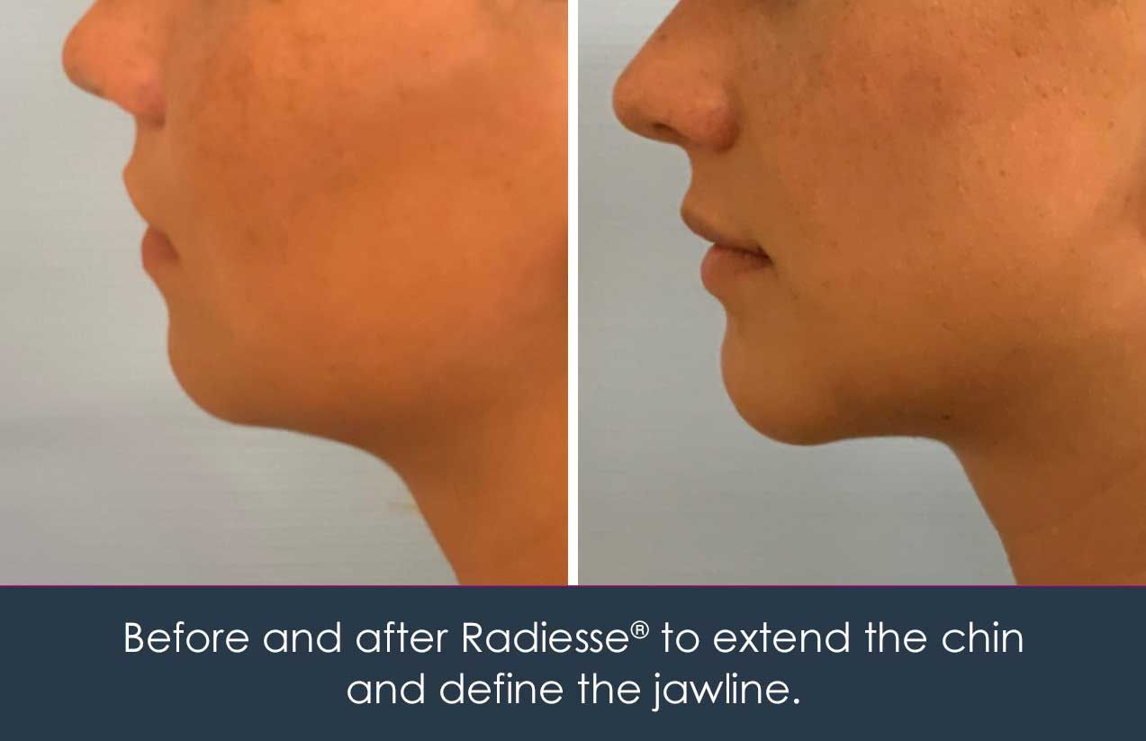 radiesse injection to the chin