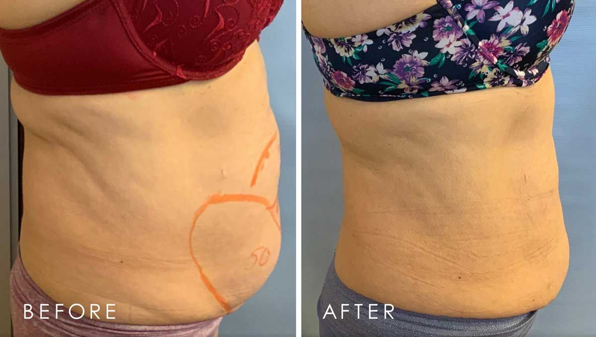 Before and After Lipodissolve treatment #1