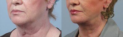 facelift to help sagging neck