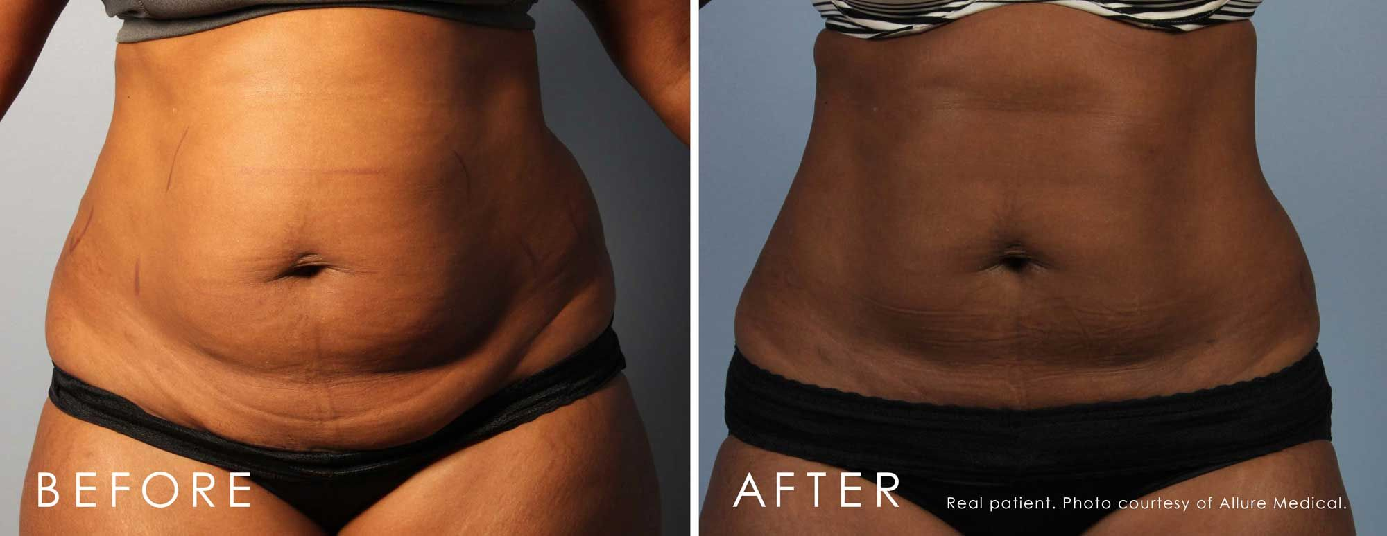Before and After CoolSculpting® treatment #1