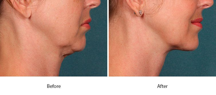 Before and After Kybella Injections treatment #4