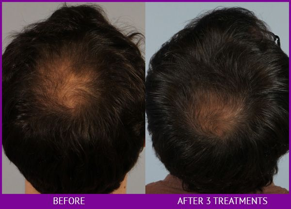 Before and After Platelet Rich Plasma (PRP) for Hair Restoration treatment #1